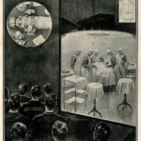 Medical students observing an operation on a lantern screen via a projecting periscope located above the operating table. Halftone after a drawing by W. Koekkoek, 1909. Collection Wellcome Library London